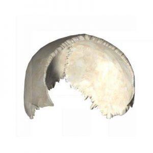 Scheitelbein (Os parietale)