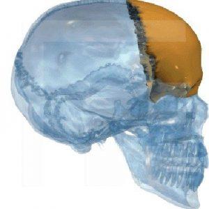 Stirnbein-(Os-frontale)