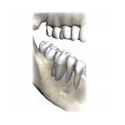 Zahnhalteapparat-Parodontium