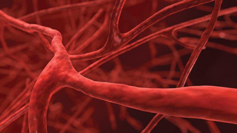 Cholesterinspiegel erhöht? Ursachen für erhöhtes Cholesterin