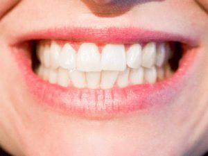 Verschiedene Zahnformen