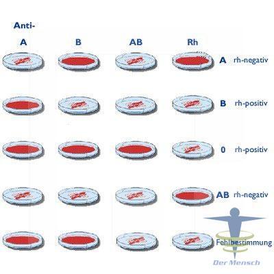 Blutgruppenbestimmung