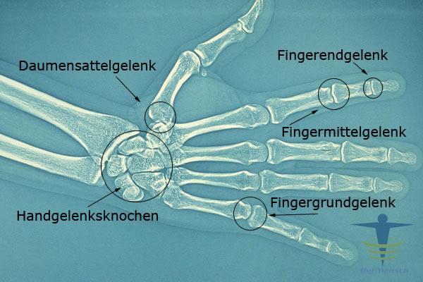 Erbsenbein (Os pisiforme)