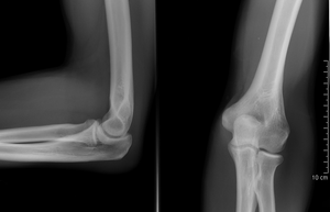 Ober / Unterarm (Brachium / Antebrachium