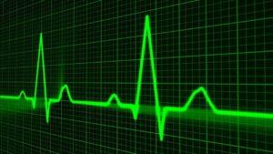 Herzaktion – Verschiedene Phasen der Herzaktion