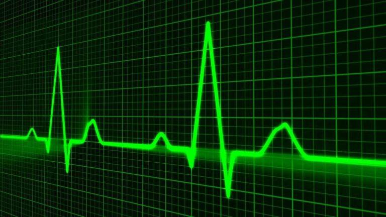 Elektrokardiogramm – Messung der Herzstromkurve